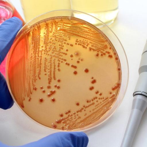 シャーレにオレンジ色の菌が入っている画像